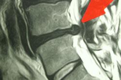 Scanningsbillede før Operation