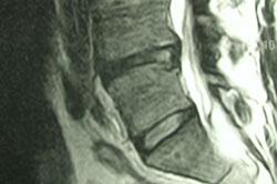 Kontrolscanning 3 måneder efter operationen